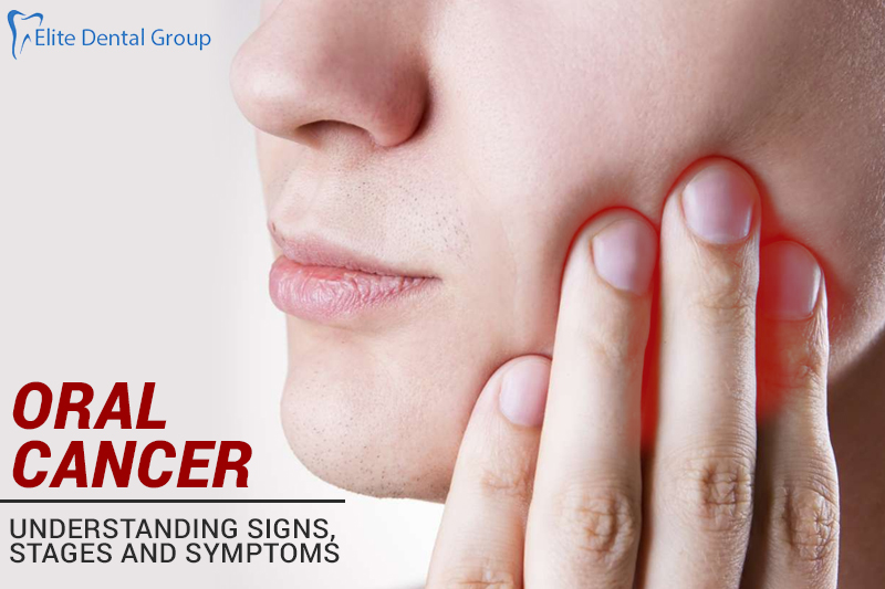 What is Oral Cancer-Understanding Signs, Stages And Symptoms