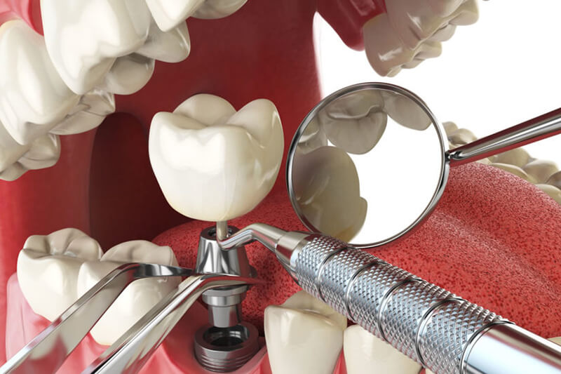 Common Causes of Dental Implant Failure