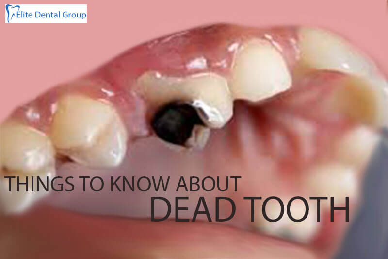 Dead Tooth: Signs, Symptoms, Causes & Treatment of Dead Tooth