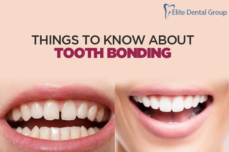 Things To Know About Tooth Bonding, Process, Disadvantages
