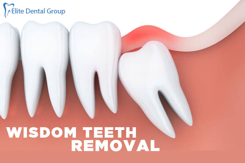 Wisdom Teeth Removal Know About Impacted and Symptoms