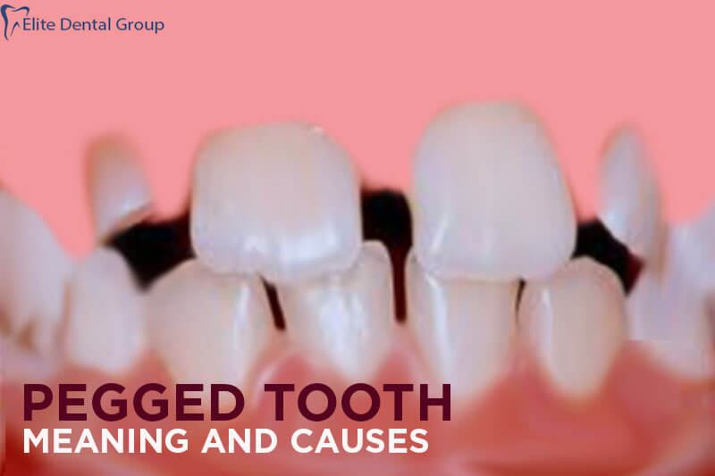 Pegged Tooth- Meaning, Causes and Treatment