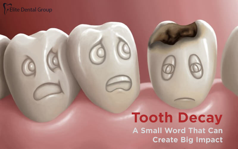 What Is Tooth Decay, Know About Symptoms & Causes
