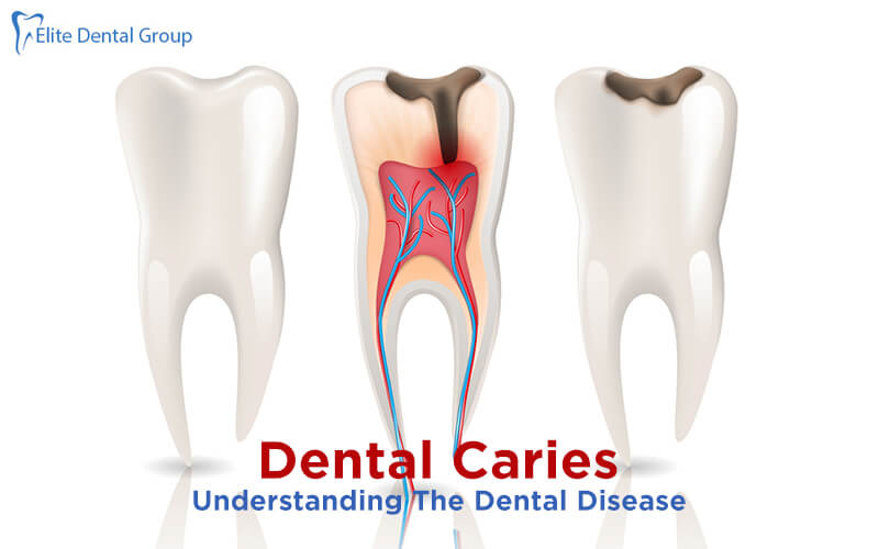 Dental Caries- Causes, Symptoms, Types and Treatment