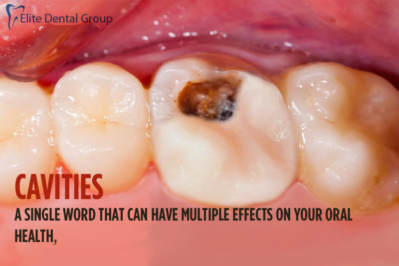Cavities- A Single Word That Can Make Multiple Effects To Your Oral Health