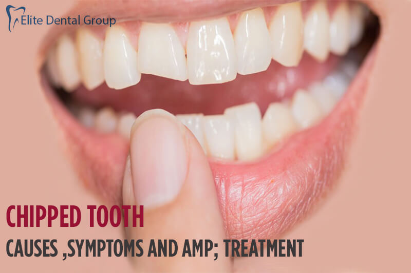Chipped Tooth- Causes, Symptoms & Treatment