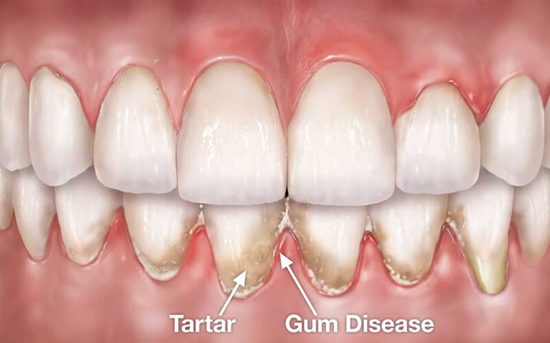 Everything You Should Know About Gum Pockets And Treatment Options
