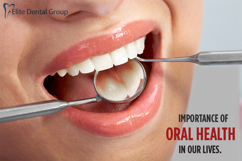 Oral Health Tips | Importance | Awarness | Preventing Tooth Decay