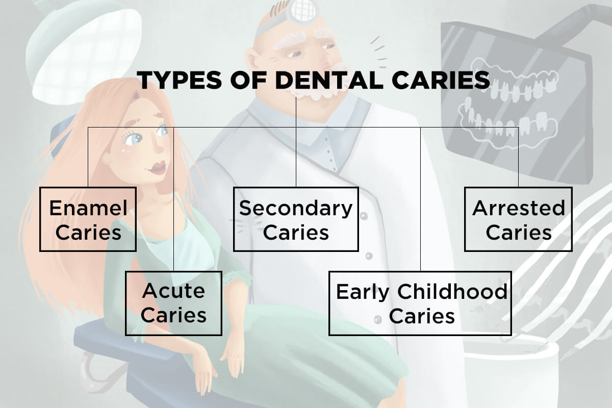 Types of Dental Caries