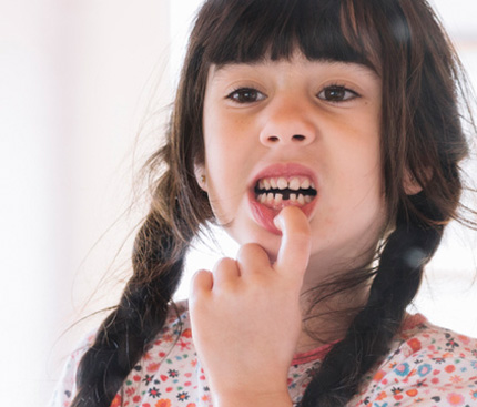 Things to Know About Broken Tooth