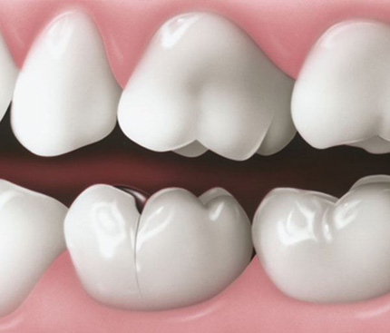What To Do When Facing A Cracked Tooth?