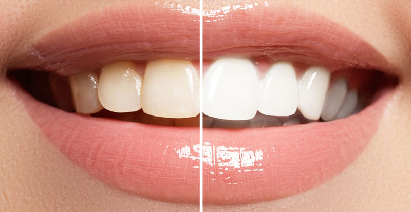 Teeth Whitening and Bleaching-Is It Safe And Effective?