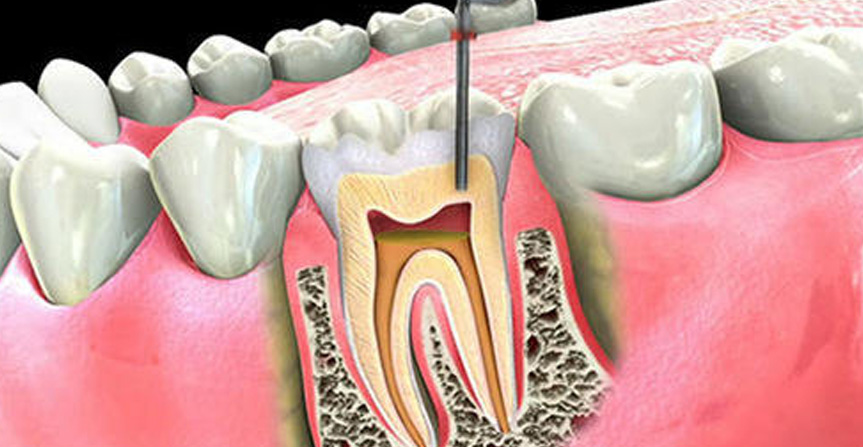 Root Canal Treatment-Things To Know