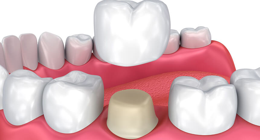 About-Cemented-Temporary-Crowns