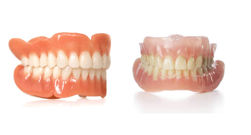 Comparison-Of-Immediate-Dentures-And-Regular-Dentures