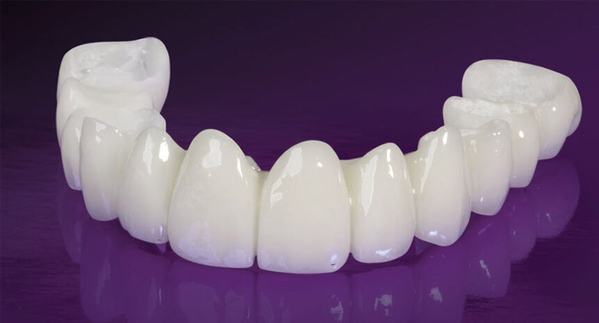 Temporary-Dental-Bridges-&-Essix-Retainers