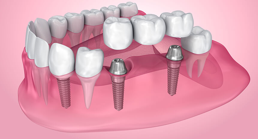 Things To Know Regarding Mini Dental Implants