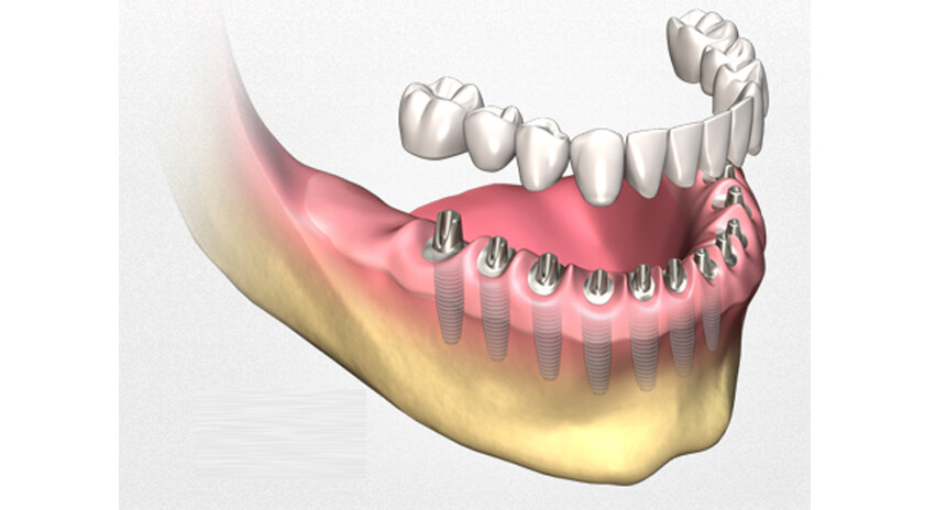 What Is A Multiple Dental Implant?