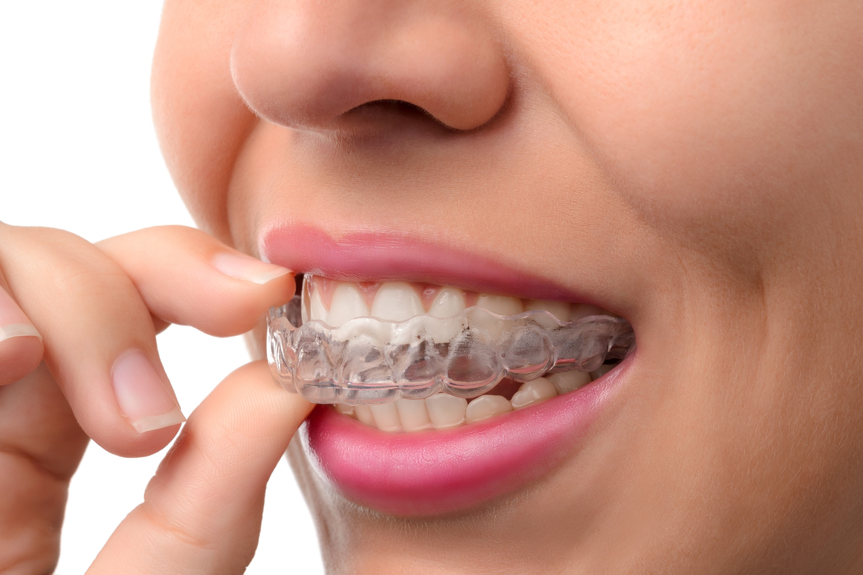 At What Age Should Your Children Get Dental Braces?