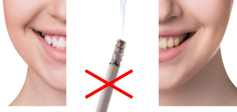 How Tobacco Ruins Your Dental Health